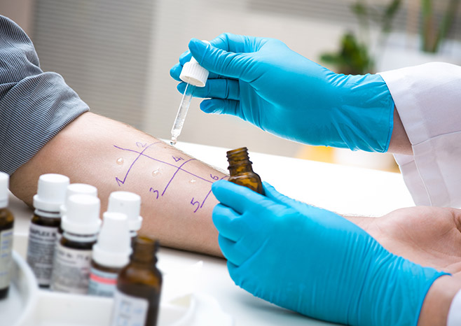 Allergy Tests 101 – What to Expect